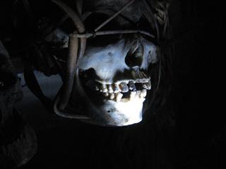 Skull in Pitt Rivers Museum